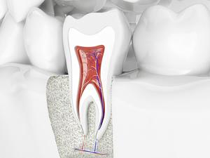 根尖性歯周炎(こんせんせいししゅうえん)とは