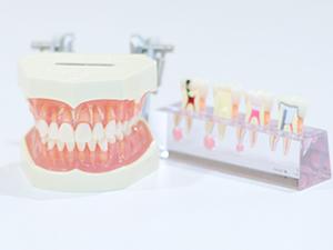 歯の神経を取るとどうなるのか